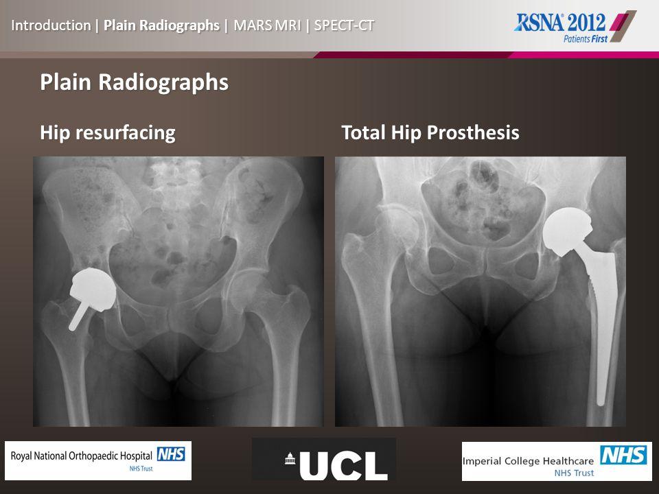 Plain Radiographs Hip resurfacing Total Hip Prosthesis Introduction | Plain Radiographs | MARS MRI | SPECT-CT