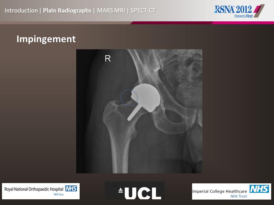 Impingement Introduction | Plain Radiographs | MARS MRI | SPECT-CT