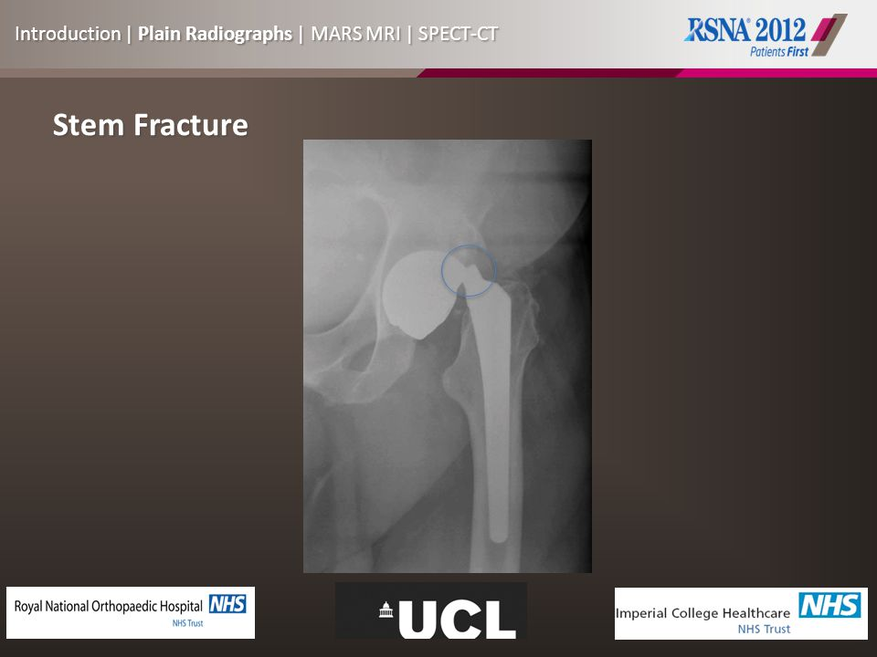 Stem Fracture Introduction | Plain Radiographs | MARS MRI | SPECT-CT