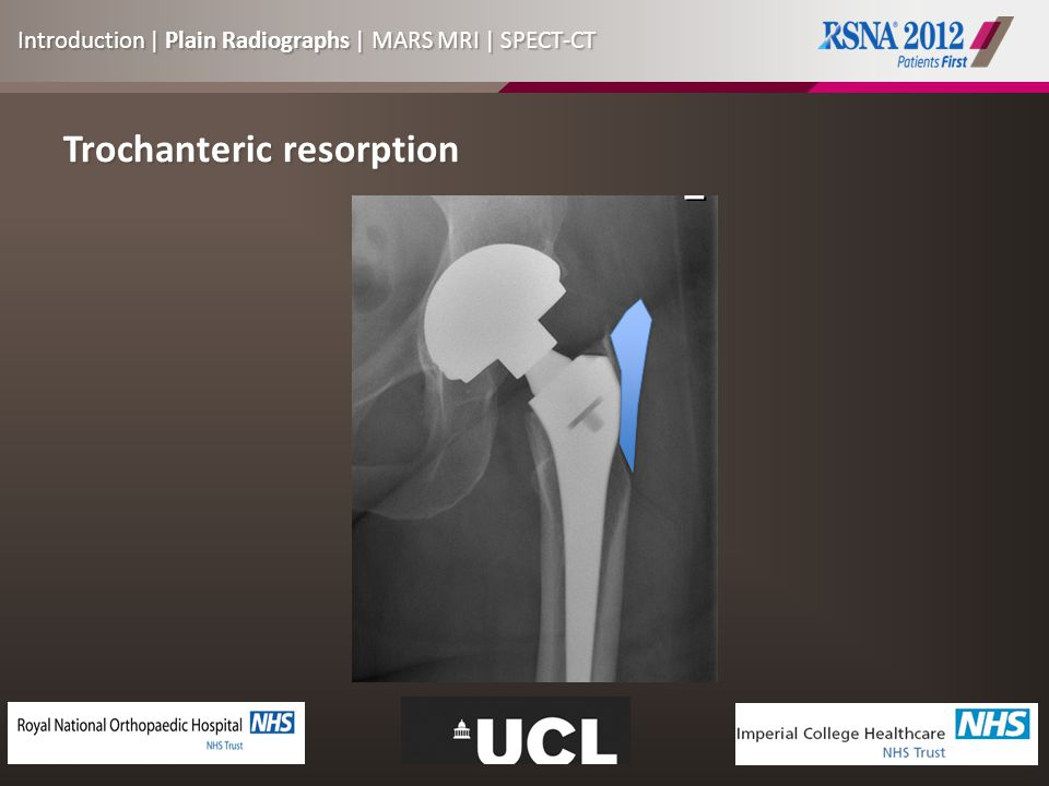 Trochanteric resorption Introduction | Plain Radiographs | MARS MRI | SPECT-CT