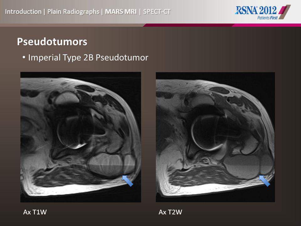 Pseudotumors Imperial Type 2B Pseudotumor Imperial Type 2B Pseudotumor Ax T2W Ax T1WAx T2W Introduction | Plain Radiographs | MARS MRI | SPECT-CT