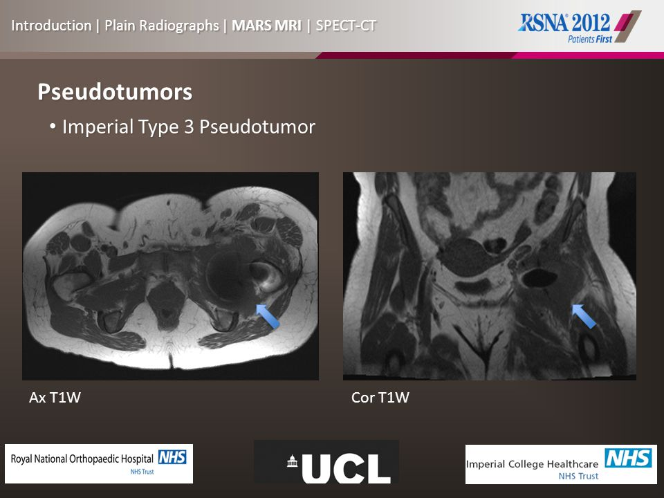 Pseudotumors Imperial Type 3 Pseudotumor Imperial Type 3 Pseudotumor Ax T1WCor T1W Introduction | Plain Radiographs | MARS MRI | SPECT-CT