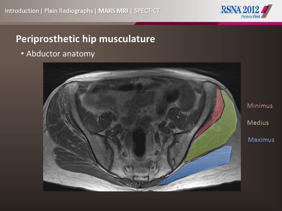 Periprosthetic hip musculature Abductor anatomy Abductor anatomy Minimus Medius Maximus Introduction | Plain Radiographs | MARS MRI | SPECT-CT