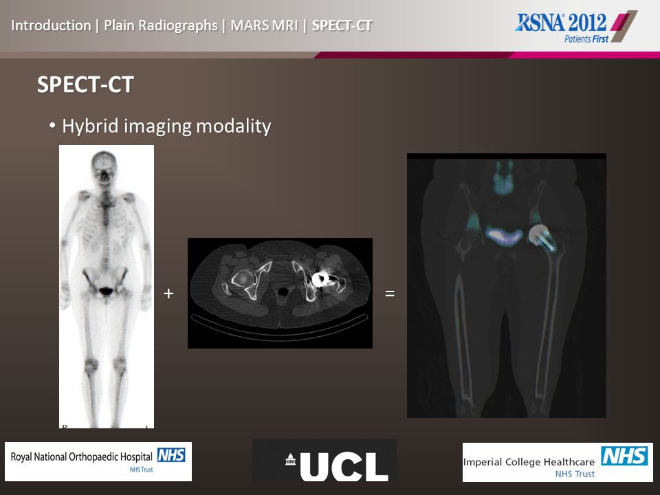 SPECT-CT Hybrid imaging modality Hybrid imaging modality += Introduction | Plain Radiographs | MARS MRI | SPECT-CT