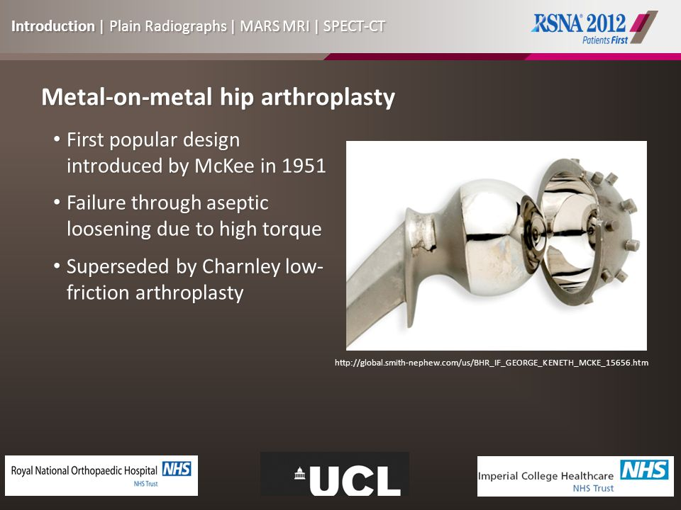 Metal-on-metal hip arthroplasty First popular design introduced by McKee in 1951 First popular design introduced by McKee in 1951 Failure through aseptic loosening due to high torque Failure through aseptic loosening due to high torque Superseded by Charnley low- friction arthroplasty Superseded by Charnley low- friction arthroplasty http://global.smith-nephew.com/us/BHR_IF_GEORGE_KENETH_MCKE_15656.htm Introduction | Plain Radiographs | MARS MRI | SPECT-CT