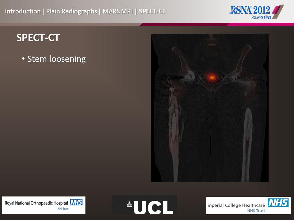 SPECT-CT Stem loosening Stem loosening Introduction | Plain Radiographs | MARS MRI | SPECT-CT