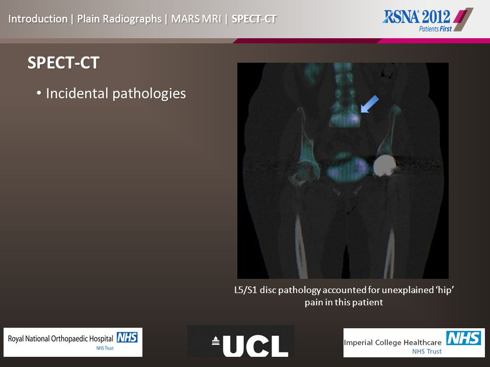 SPECT-CT Incidental pathologies Incidental pathologies L5/S1 disc pathology accounted for unexplained 'hip' pain in this patient Introduction | Plain Radiographs | MARS MRI | SPECT-CT