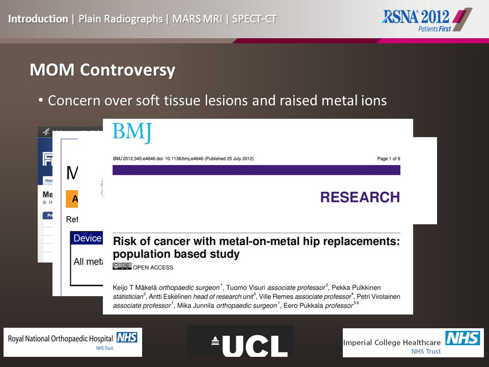 MOM Controversy Concern over soft tissue lesions and raised metal ions Concern over soft tissue lesions and raised metal ions Introduction | Plain Radiographs | MARS MRI | SPECT-CT