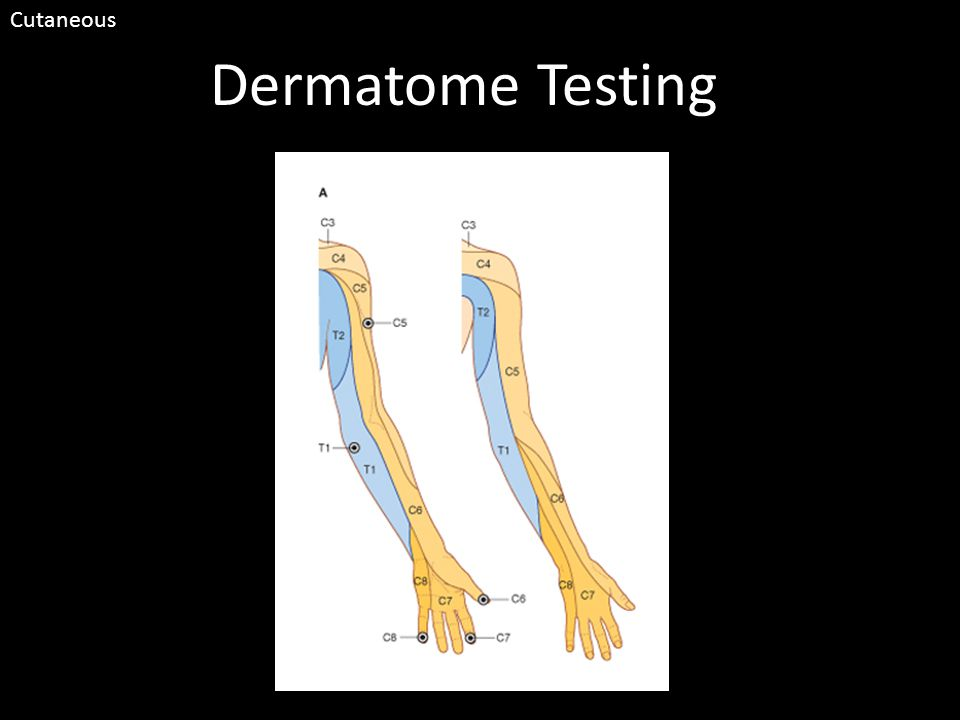 Dermatome Testing Cutaneous