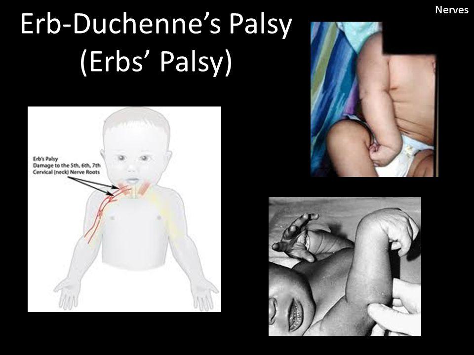 Erb-Duchenne's Palsy (Erbs' Palsy) Nerves
