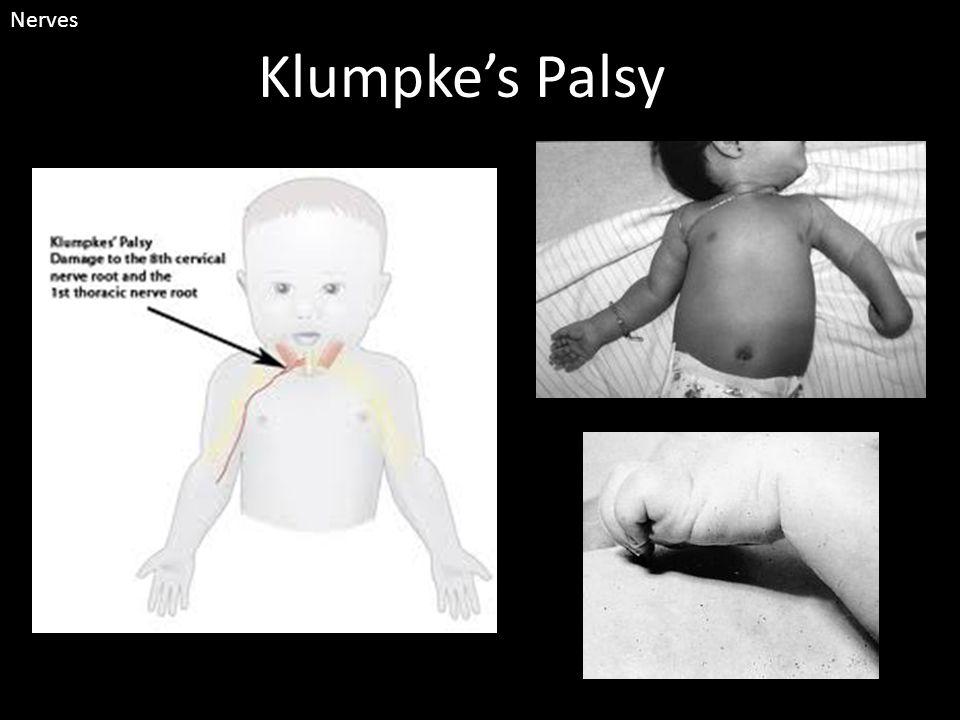Klumpke's Palsy Nerves