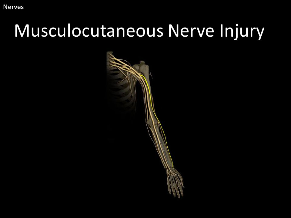 Musculocutaneous Nerve Injury Nerves