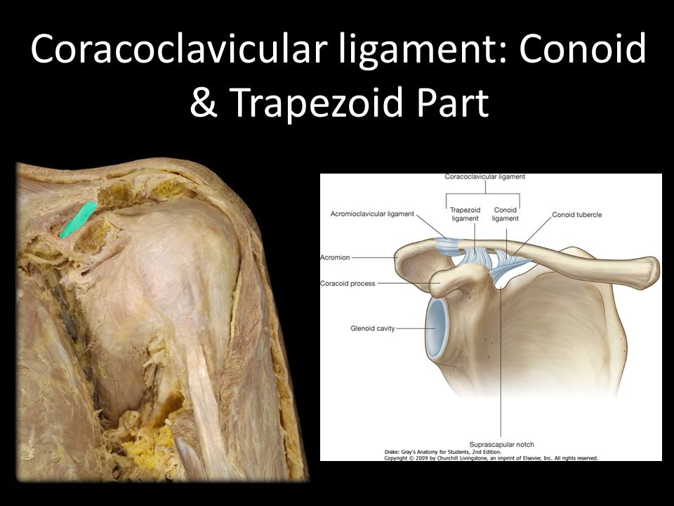 Coracoclavicular ligament: Conoid & Trapezoid Part