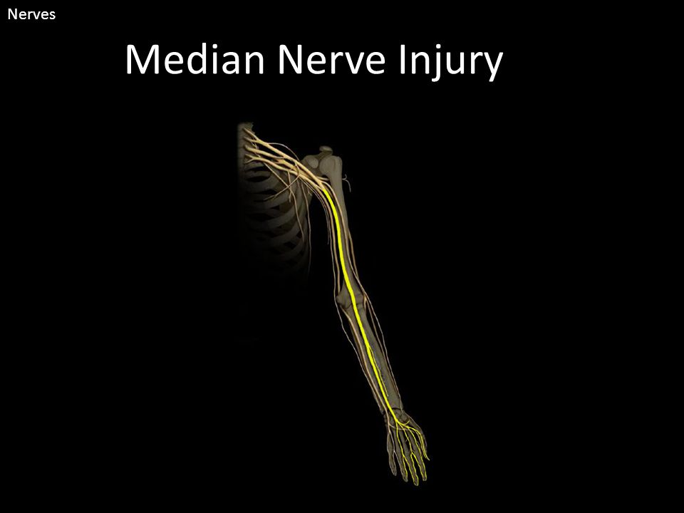 Median Nerve Injury Nerves