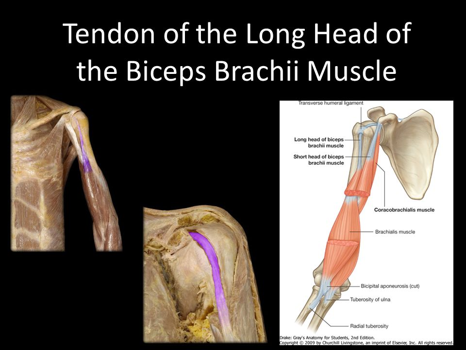 Tendon of the Long Head of the Biceps Brachii Muscle