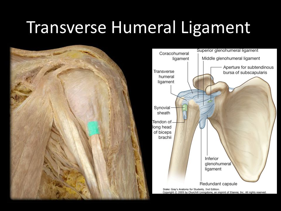 Transverse Humeral Ligament