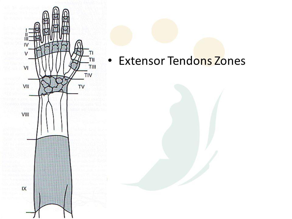Extensor Tendons Zones