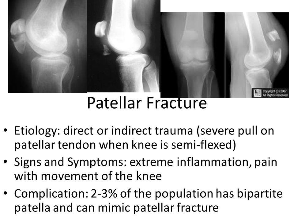 Patellar Fracture Etiology: direct or indirect trauma (severe pull on patellar tendon when knee is semi-flexed) Signs and Symptoms: extreme inflammation, pain with movement of the knee Complication: 2-3% of the population has bipartite patella and can mimic patellar fracture