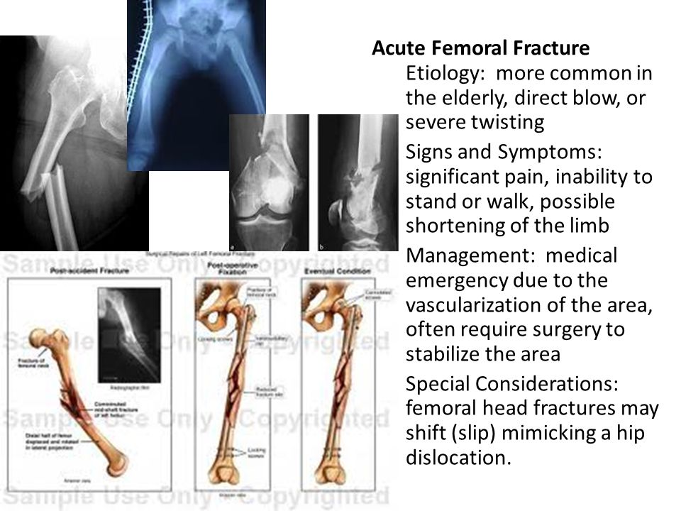 Acute Femoral Fracture Etiology: more common in the elderly, direct blow, or severe twisting Signs and Symptoms: significant pain, inability to stand or walk, possible shortening of the limb Management: medical emergency due to the vascularization of the area, often require surgery to stabilize the area Special Considerations: femoral head fractures may shift (slip) mimicking a hip dislocation.