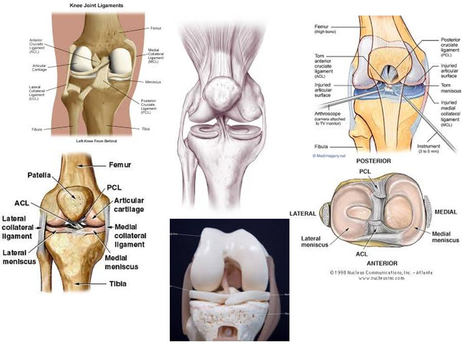 Patellar Dislocation Etiology: deceleration with planting and cutting or blow to the knee causing the quadriceps to pull the patella laterally S&S: deformity, inability to flex knee, pain and muscle spasm Often relocates on its own