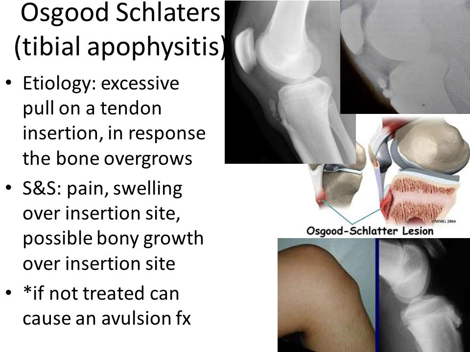 Osgood Schlaters (tibial apophysitis) Etiology: excessive pull on a tendon insertion, in response the bone overgrows S&S: pain, swelling over insertion site, possible bony growth over insertion site *if not treated can cause an avulsion fx