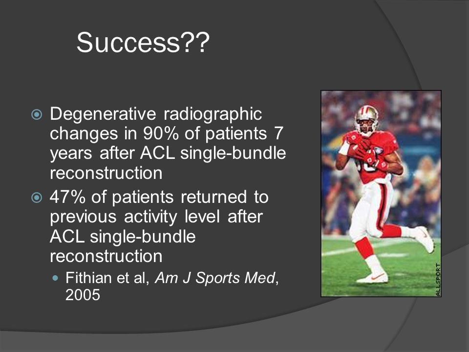 Success??  Degenerative radiographic changes in 90% of patients 7 years after ACL single-bundle reconstruction  47% of patients returned to previous