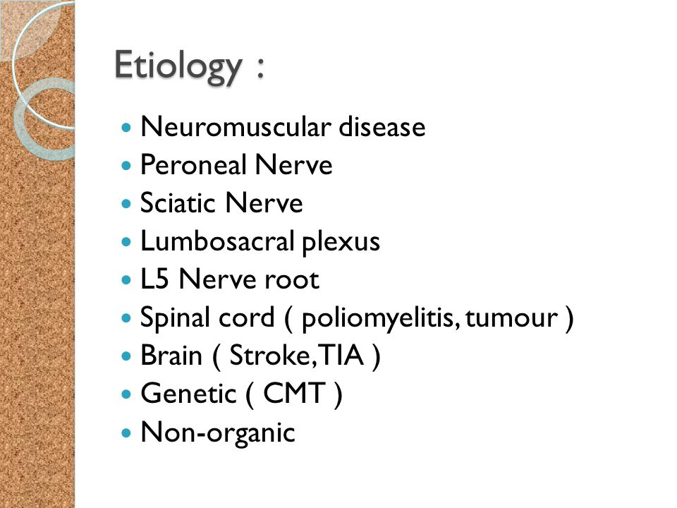 Etiology : Neuromuscular disease Peroneal Nerve Sciatic Nerve Lumbosacral plexus L5 Nerve root Spinal cord ( poliomyelitis, tumour ) Brain ( Stroke, T