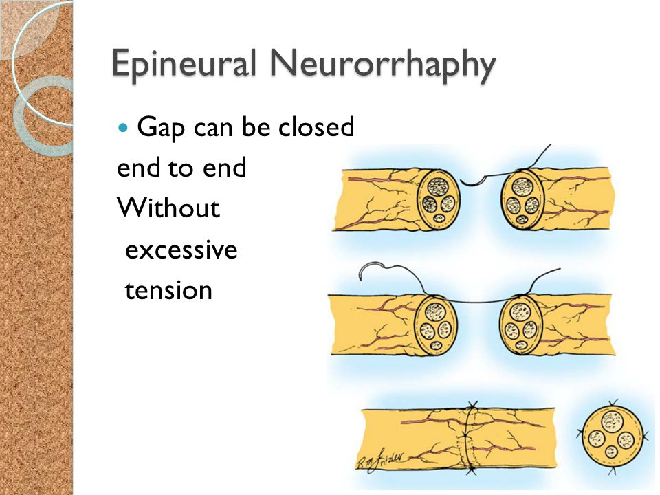 Epineural Neurorrhaphy Gap can be closed end to end Without excessive tension