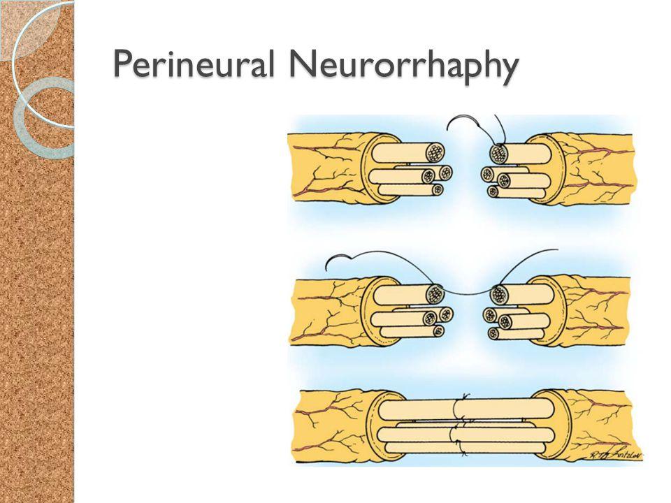 Perineural Neurorrhaphy