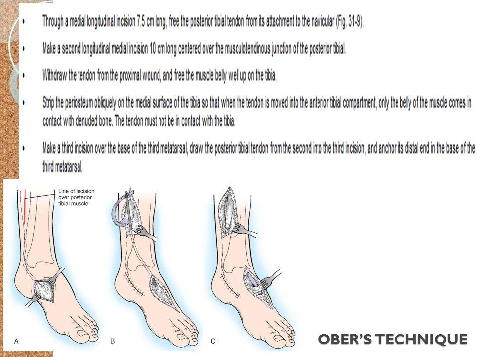 OBER'S TECHNIQUE