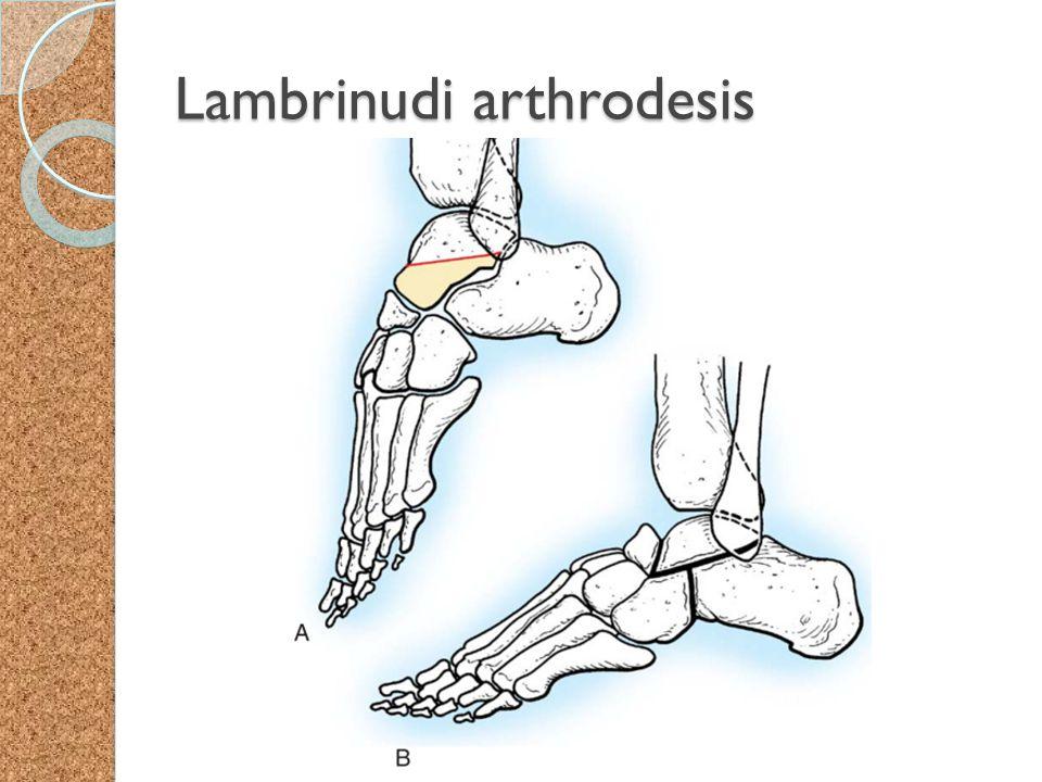 Lambrinudi arthrodesis