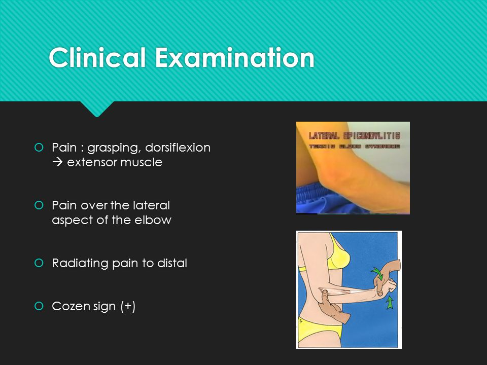 Clinical Examination  Pain : grasping, dorsiflexion  extensor muscle  Pain over the lateral aspect of the elbow  Radiating pain to distal  Cozen sign (+)  Pain : grasping, dorsiflexion  extensor muscle  Pain over the lateral aspect of the elbow  Radiating pain to distal  Cozen sign (+)