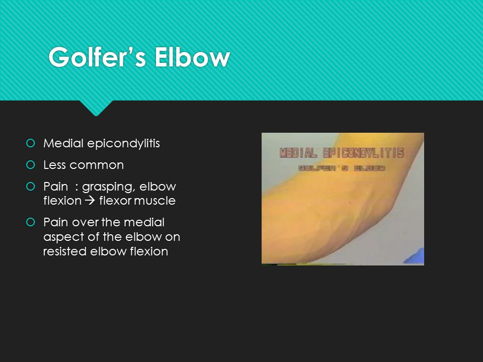 Golfer's Elbow  Medial epicondylitis  Less common  Pain : grasping, elbow flexion  flexor muscle  Pain over the medial aspect of the elbow on resisted elbow flexion  Medial epicondylitis  Less common  Pain : grasping, elbow flexion  flexor muscle  Pain over the medial aspect of the elbow on resisted elbow flexion
