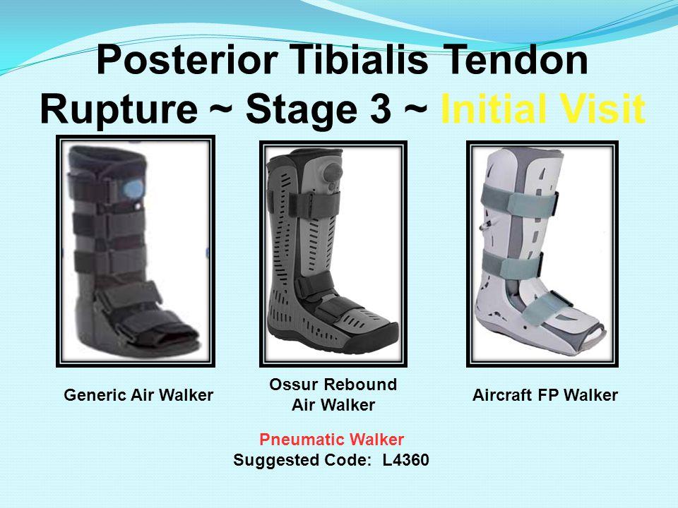 Posterior Tibialis Tendon Rupture ~ Stage 3 ~ Initial Visit Pneumatic Walker Suggested Code: L4360 Ossur Rebound Air Walker Generic Air WalkerAircraft