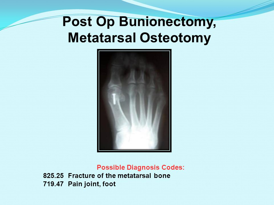 Post Op Bunionectomy, Metatarsal Osteotomy Possible Diagnosis Codes: 825.25 Fracture of the metatarsal bone 719.47 Pain joint, foot