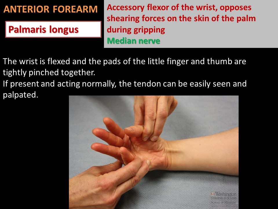 Palmaris longus The wrist is flexed and the pads of the little finger and thumb are tightly pinched together.