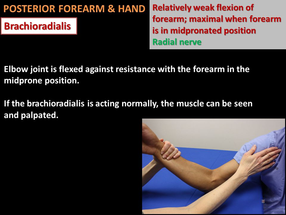Brachioradialis Relatively weak flexion of forearm; maximal when forearm is in midpronated position Radial nerve Elbow joint is flexed against resistance with the forearm in the midprone position.
