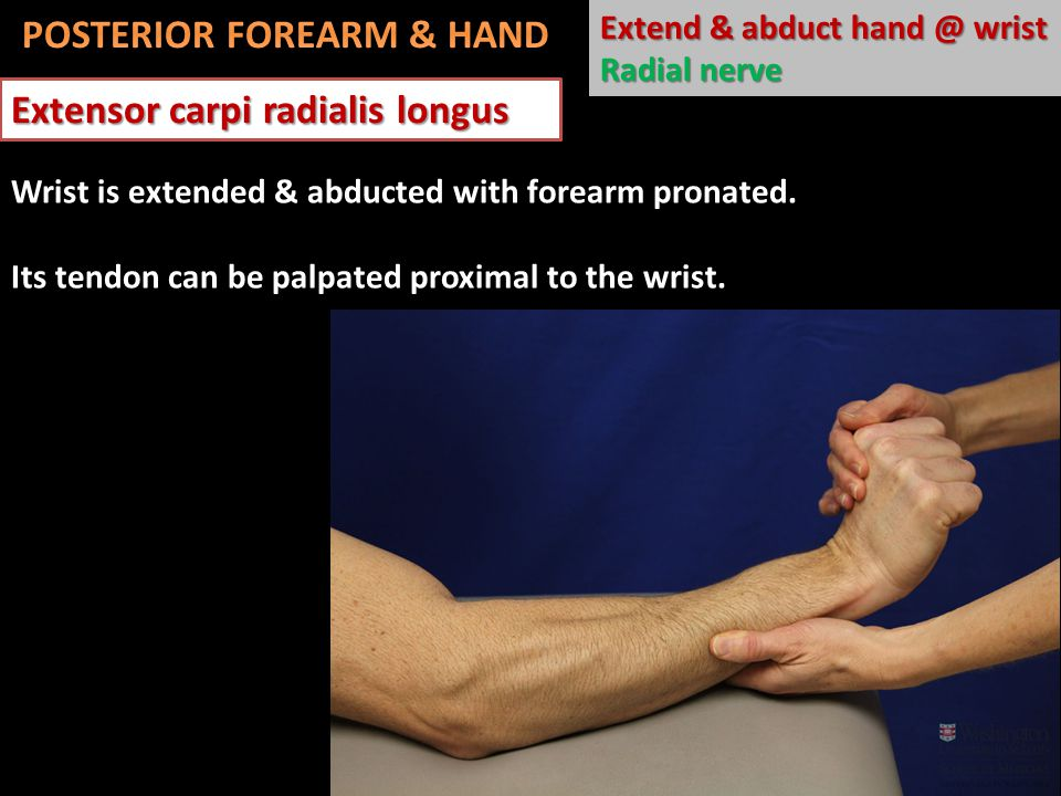 Extensor carpi radialis longus Extend & abduct hand @ wrist Radial nerve Wrist is extended & abducted with forearm pronated.