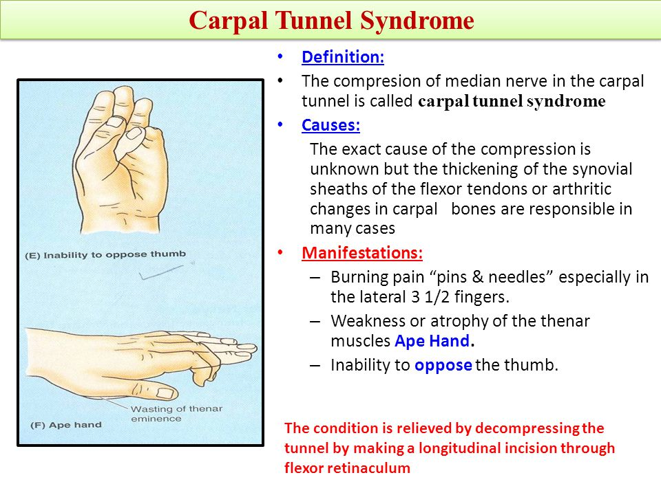 HAND It is the Thickened deep fascia of the hand Triangular in shape Occupies the central area of the palm The apex is attached to the distal border of flexor retinaculum and receives the insertion of palmaris longus tendon.