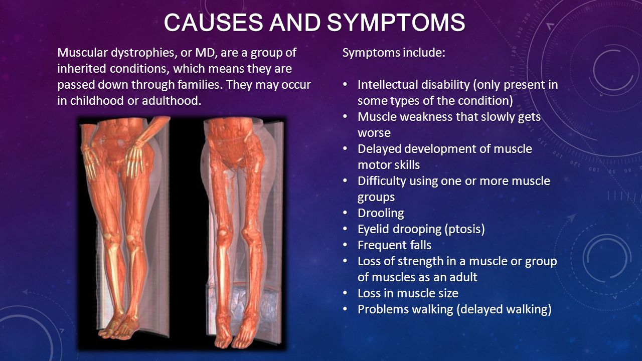 CAUSES AND SYMPTOMS Muscular dystrophies, or MD, are a group of inherited conditions, which means they are passed down through families.