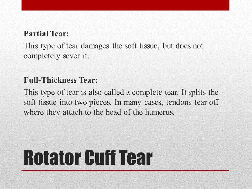 Rotator Cuff Tear Partial Tear: This type of tear damages the soft tissue, but does not completely sever it.