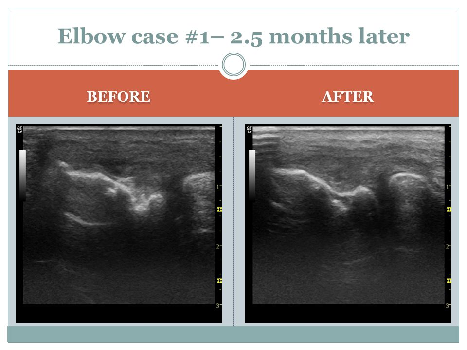 BEFORE AFTER Elbow case #1– 2.5 months later