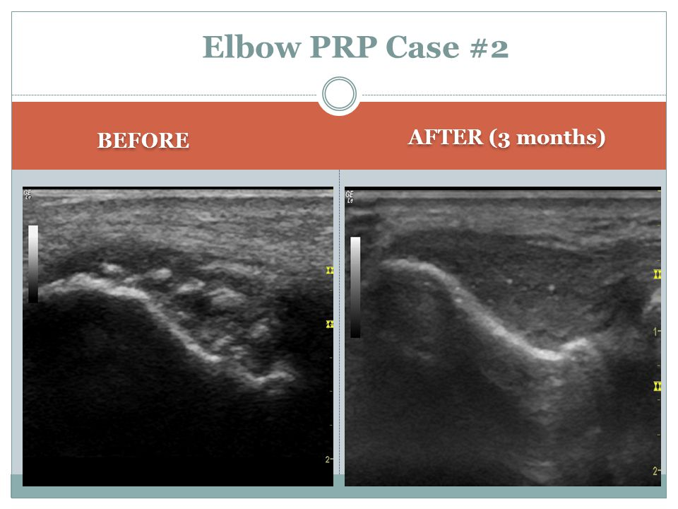 Elbow PRP Case #2 BEFORE AFTER (3 months)