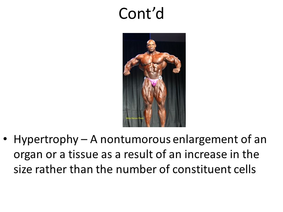 Cont'd Hypertrophy – A nontumorous enlargement of an organ or a tissue as a result of an increase in the size rather than the number of constituent cells