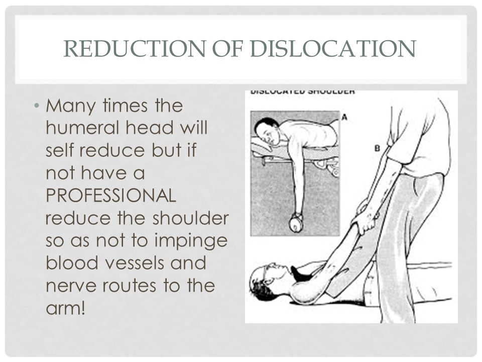 REDUCTION OF DISLOCATION Many times the humeral head will self reduce but if not have a PROFESSIONAL reduce the shoulder so as not to impinge blood ve