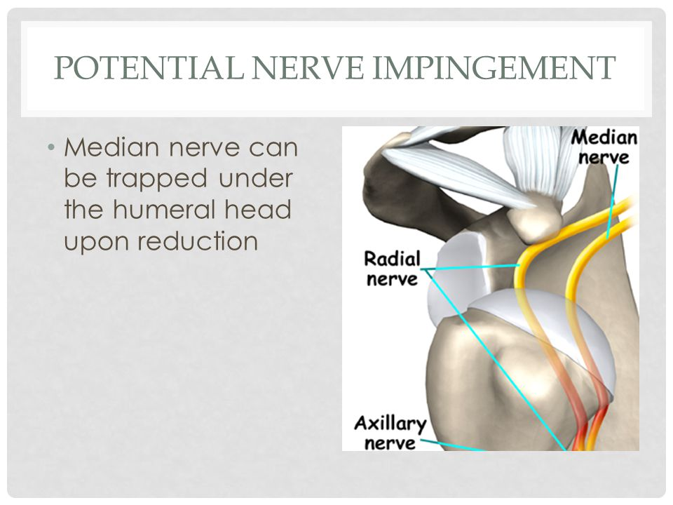 POTENTIAL NERVE IMPINGEMENT Median nerve can be trapped under the humeral head upon reduction