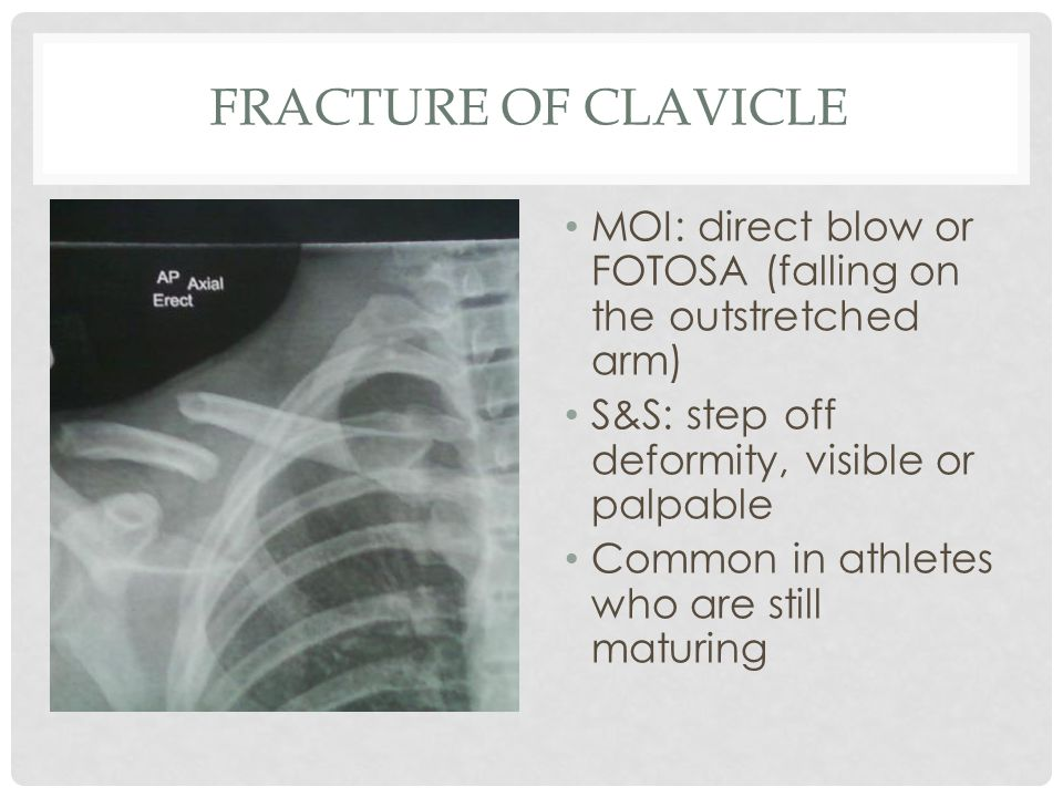 FRACTURE OF CLAVICLE MOI: direct blow or FOTOSA (falling on the outstretched arm) S&S: step off deformity, visible or palpable Common in athletes who