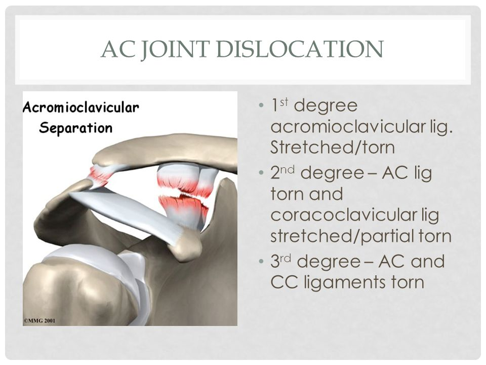 AC JOINT DISLOCATION 1 st degree acromioclavicular lig. Stretched/torn 2 nd degree – AC lig torn and coracoclavicular lig stretched/partial torn 3 rd