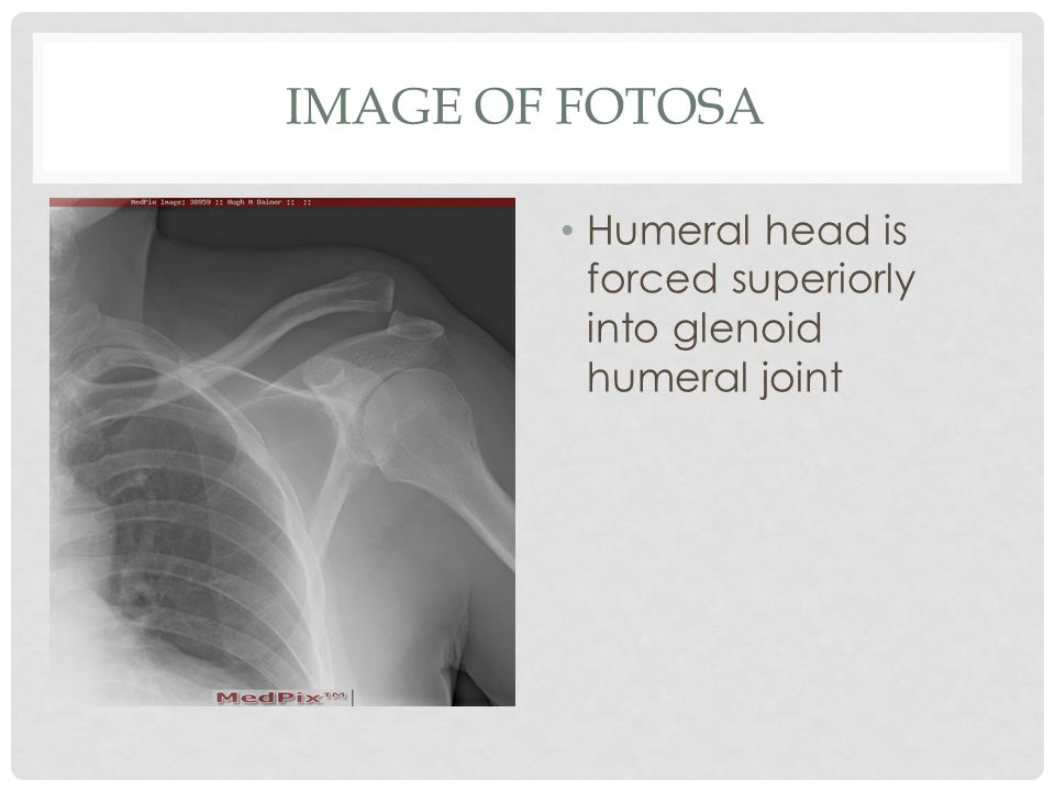 IMAGE OF FOTOSA Humeral head is forced superiorly into glenoid humeral joint