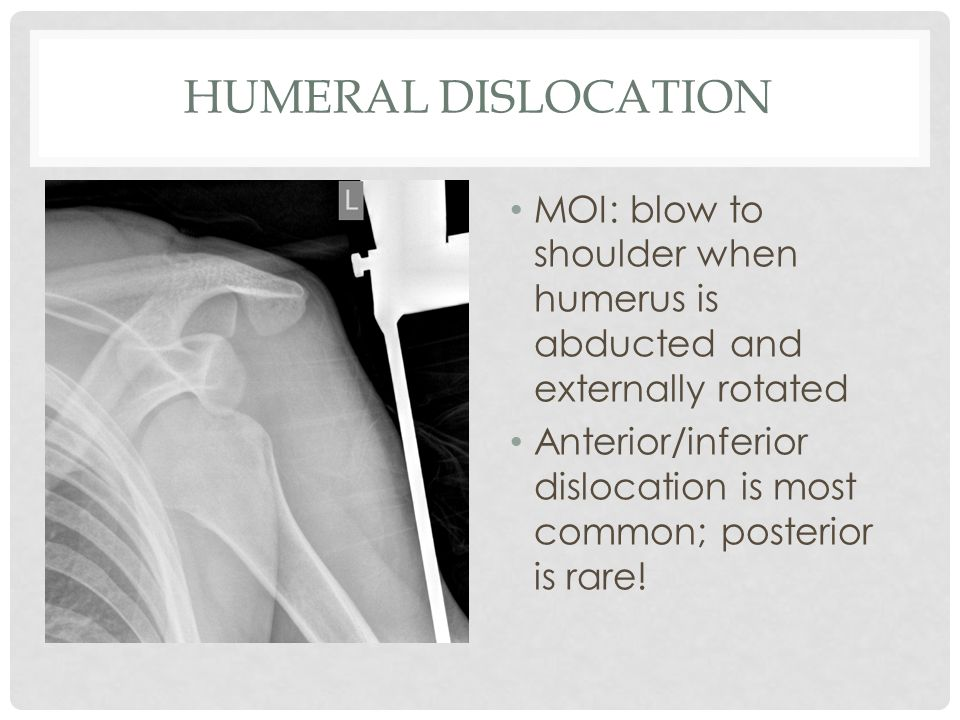 HUMERAL DISLOCATION MOI: blow to shoulder when humerus is abducted and externally rotated Anterior/inferior dislocation is most common; posterior is r